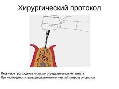 Хирургический протокол Первичное прохождение кости для определения оси имплан...