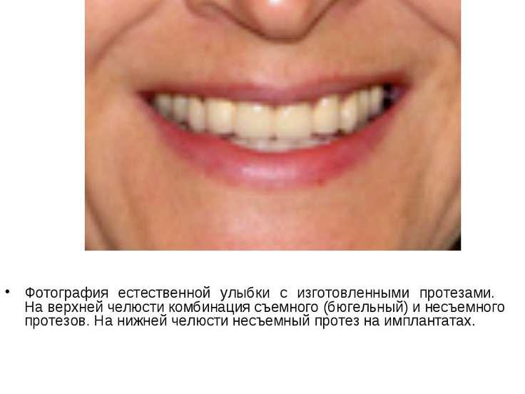 Фотография естественной улыбки с изготовленными протезами. На верхней челюсти...