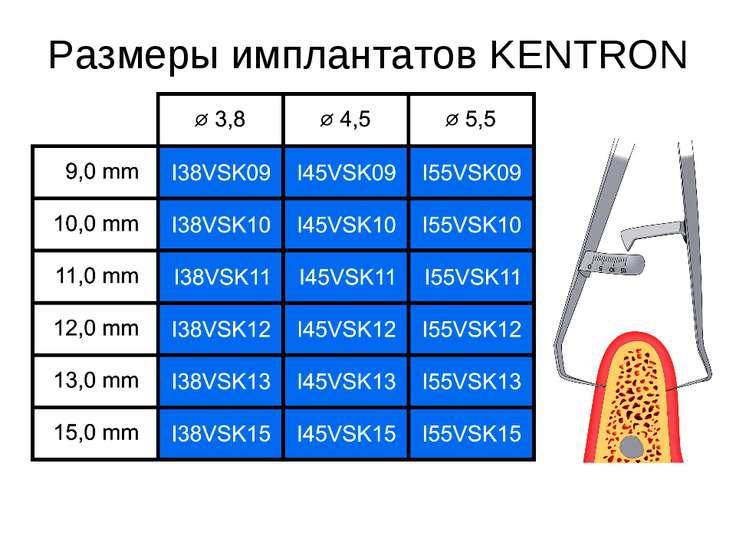 Размеры имплантатов KENTRON