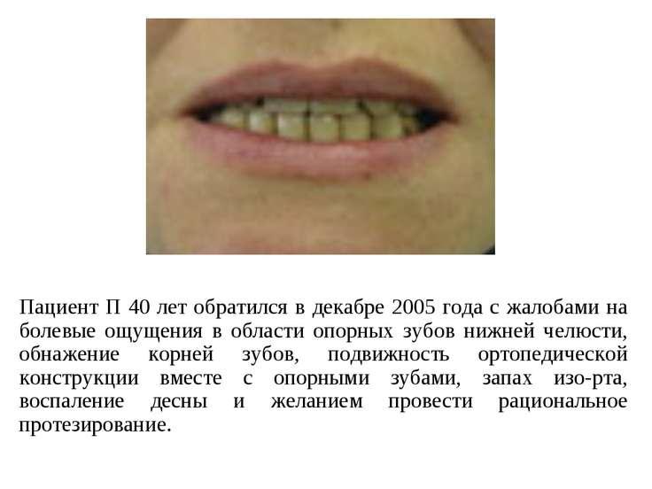Пациент П 40 лет обратился в декабре 2005 года с жалобами на болевые ощущения...