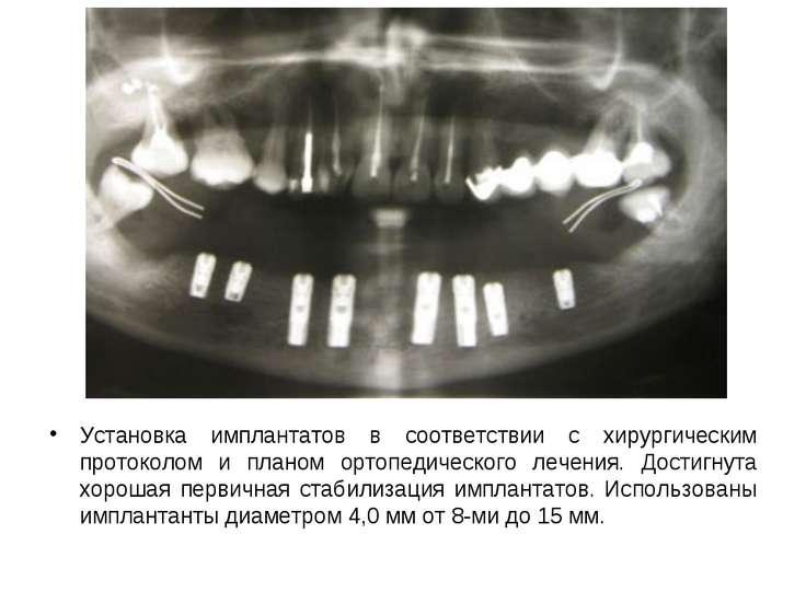 Установка имплантатов в соответствии с хирургическим протоколом и планом орто...