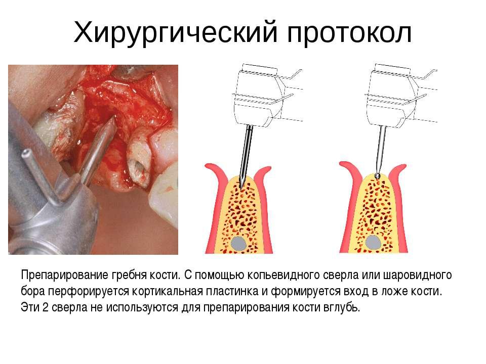 Хирургический протокол Препарирование гребня кости. С помощью копьевидного св...