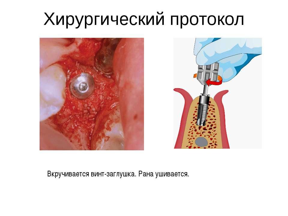 Хирургический протокол Вкручивается винт-заглушка. Рана ушивается.