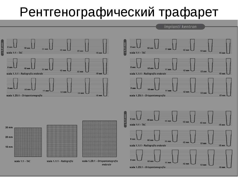 Рентгенографический трафарет
