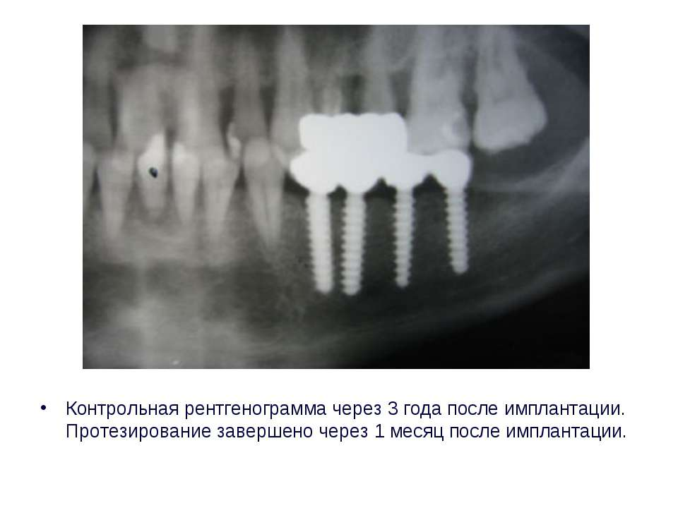 Контрольная рентгенограмма через 3 года после имплантации. Протезирование зав...
