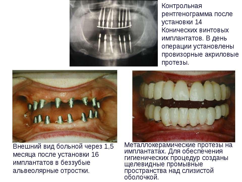 Металлокерамические протезы на имплантатах. Для обеспечения гигиенических про...
