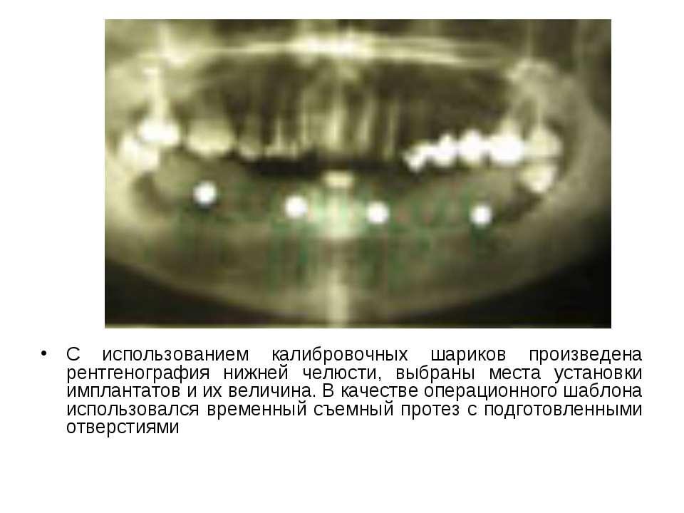 С использованием калибровочных шариков произведена рентгенография нижней челю...