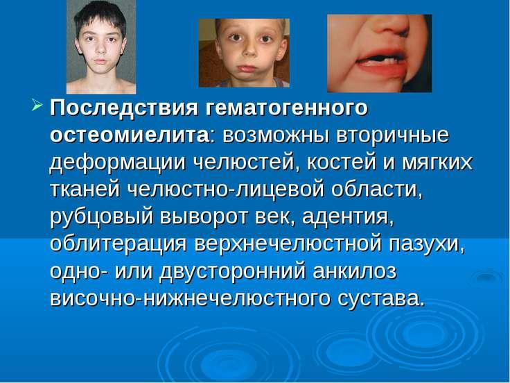 Последствия гематогенного остеомиелита: возможны вторичные деформации челюсте...