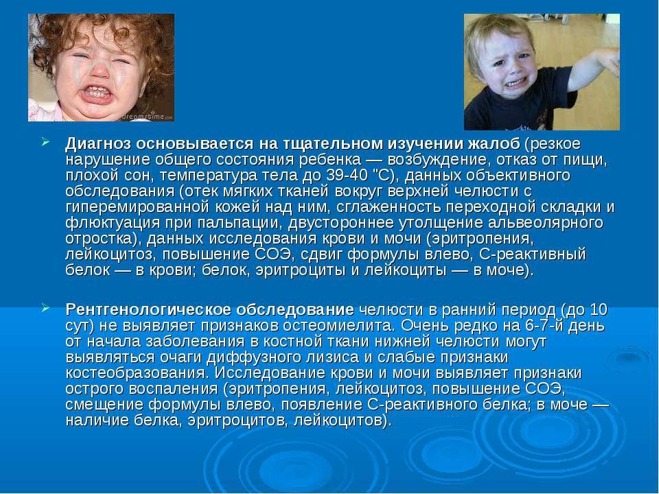 Диагноз основывается на тщательном изучении жалоб(резкое нарушение общего со...