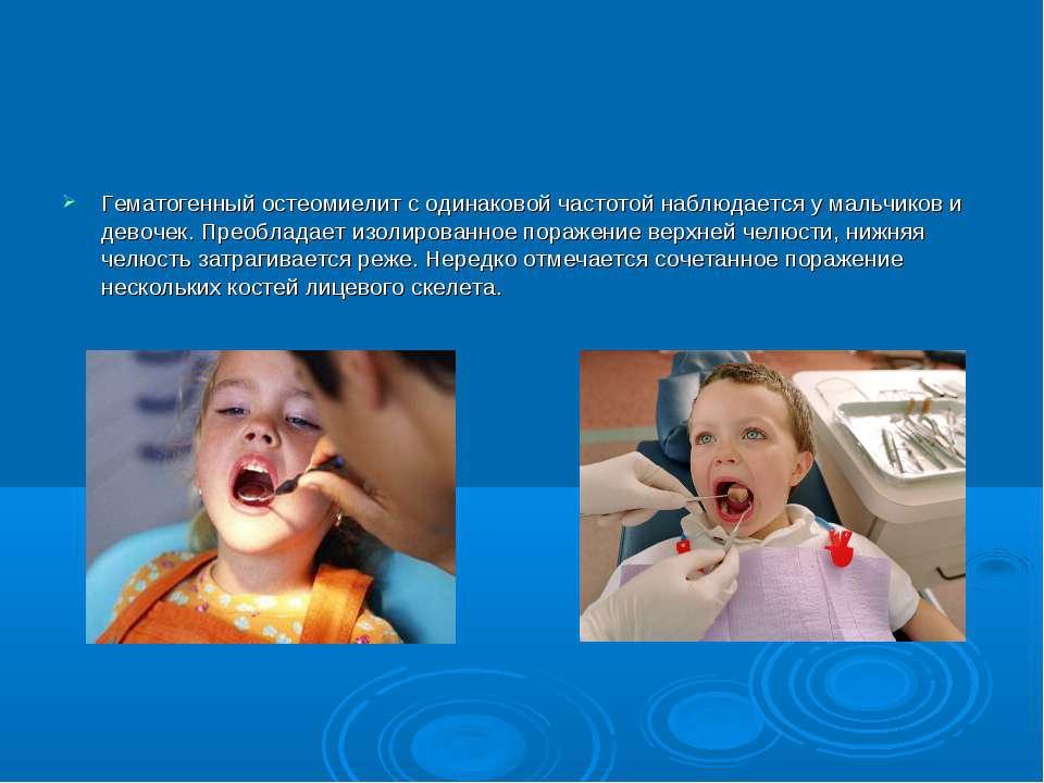 Гематогенный остеомиелит с одинаковой частотой наблюдается у мальчиков и дево...