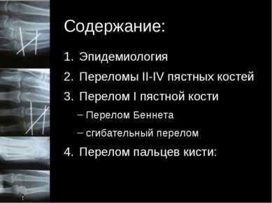 Содержание: Эпидемиология Переломы II-IV пястных костей Перелом I пястной кос...