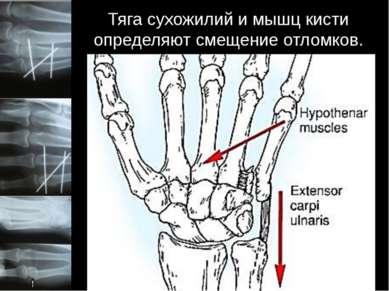Тяга сухожилий и мышц кисти определяют смещение отломков. Линия перелома прох...