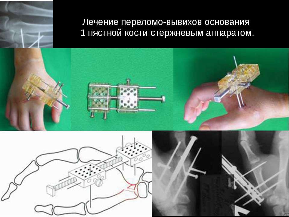Лечение переломо-вывихов основания 1 пястной кости стержневым аппаратом.