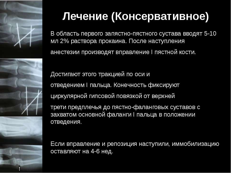 Лечение (Консервативное) В область первого запястно-пястного сустава вводят 5...