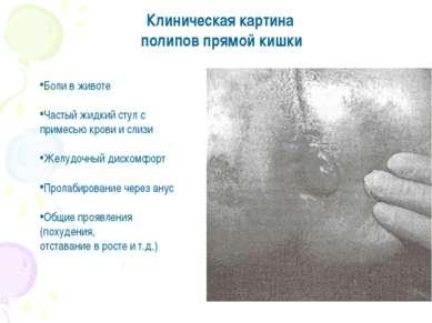 Клиническая картина полипов прямой кишки Боли в животе Частый жидкий стул с п...