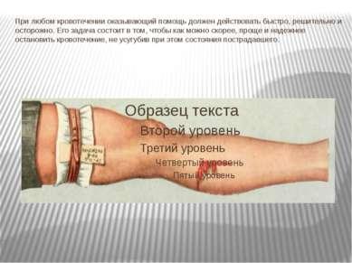 При любом кровотечении оказывающий помощь должен действовать быстро, решитель...