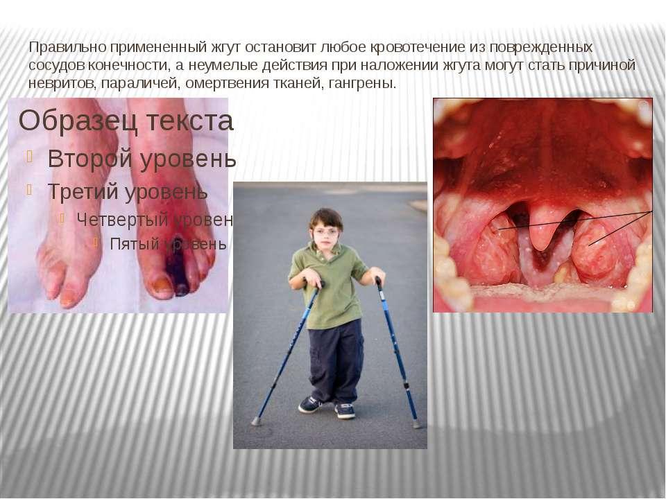 Правильно примененный жгут остановит любое кровотечение из поврежденных сосуд...