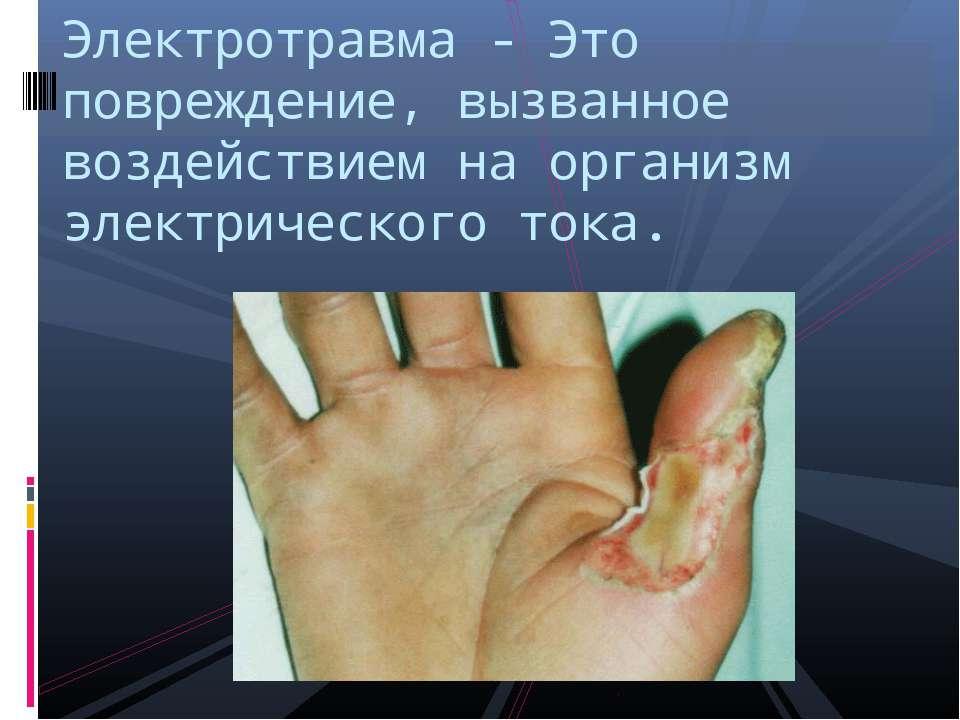 Электротравма - Это повреждение, вызванное воздействием на организм электриче...