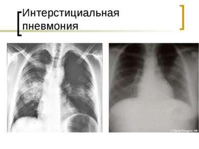 Интерстициальная пневмония