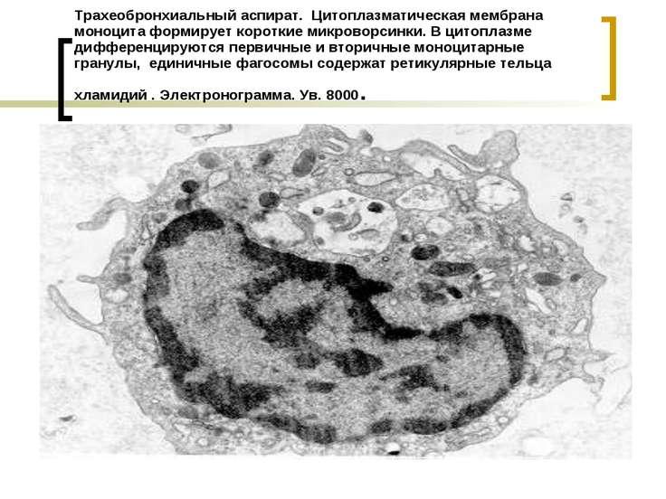 Трахеобронхиальный аспират. Цитоплазматическая мембрана моноцита формирует ко...
