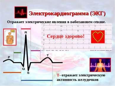 Электрокардиограмма (ЭКГ) Отражает электрические явления в работающем сердце....