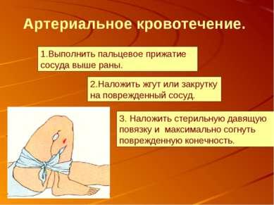 3. Наложить стерильную давящую повязку и максимально согнуть поврежденную кон...