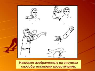 Назовите изображенные на рисунках способы остановки кровотечения.