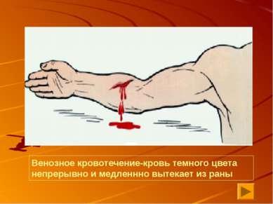 Венозное кровотечение-кровь темного цвета непрерывно и медленнно вытекает из ...