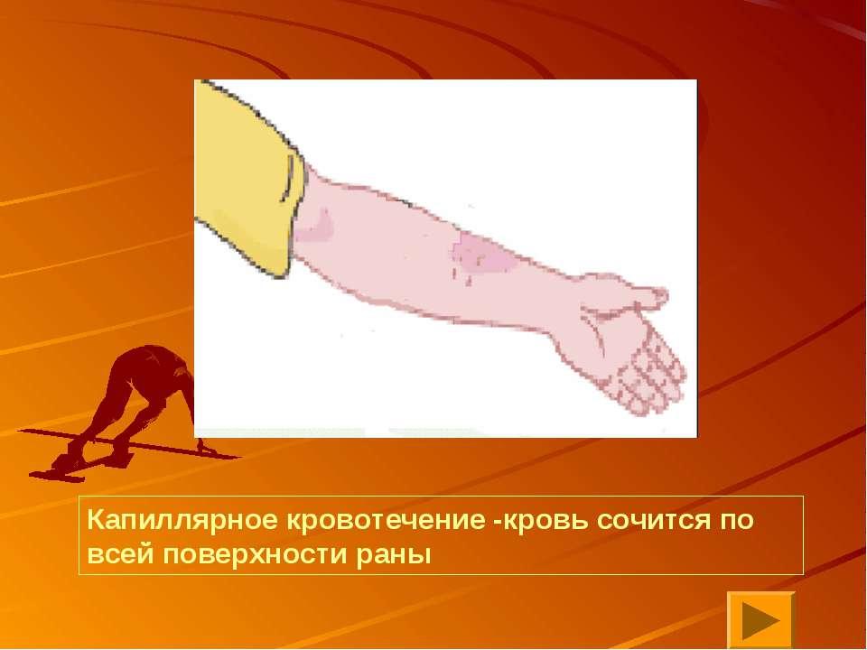 Капиллярное кровотечение -кровь сочится по всей поверхности раны
