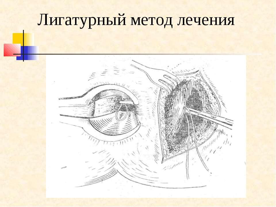 Лигатурный метод лечения