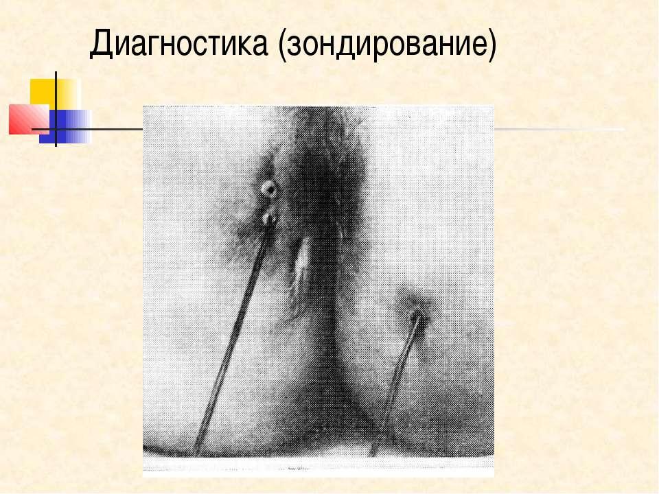 Диагностика (зондирование)