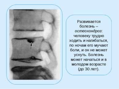 Развивается болезнь – остеохондроз: человеку трудно ходить и нагибаться, по н...