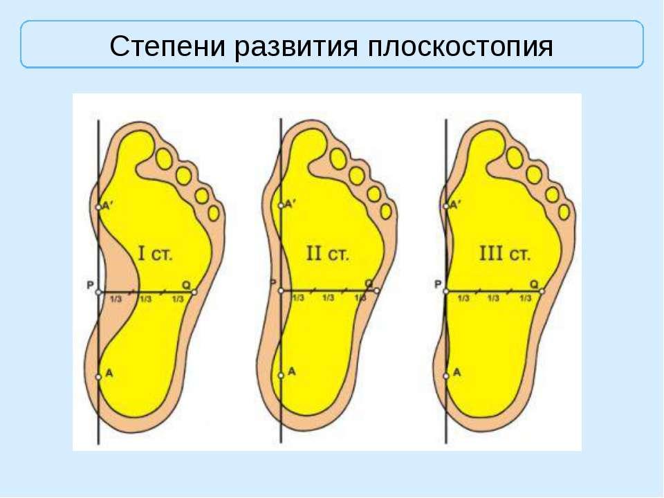 Косточки на ногах возле больших пальцев