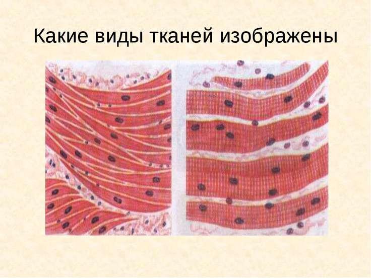 Какие виды тканей изображены