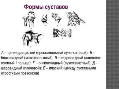 Формы суставов А– цилиндрицеский (проксимальный лучелоктевой);Б– блоковидн...