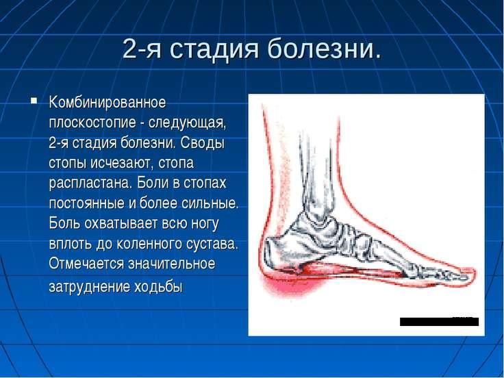 2-я стадия болезни. Комбинированное плоскостопие - следующая, 2-я стадия боле...