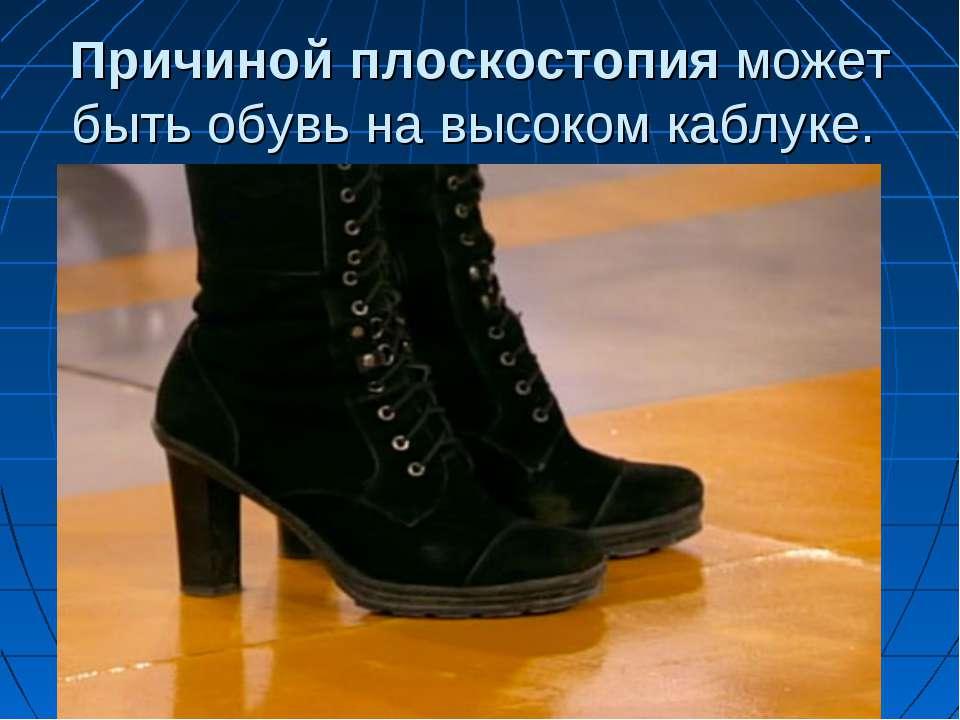 Причинойплоскостопияможет быть обувь навысоком каблуке.