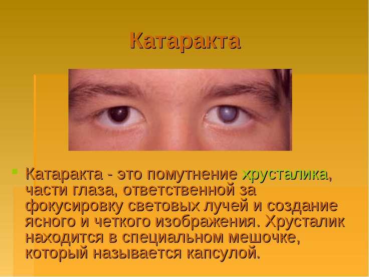 Катаракта Катаракта - это помутнение хрусталика, части глаза, ответственной з...