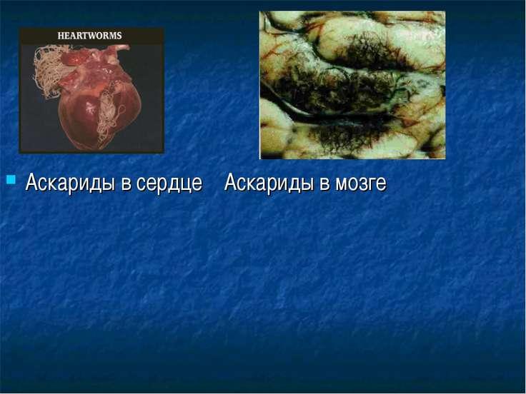 Аскариды в сердце Аскариды в мозге