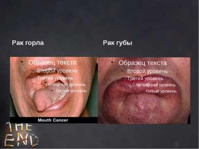 Рак горла Рак губы