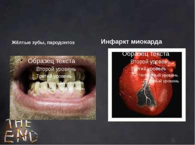 Жёлтые зубы, пародонтоз Инфаркт миокарда