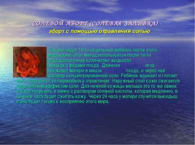СОЛЕВОЙ АБОРТ (СОЛЕВАЯ ЗАЛИВКА) -  аборт с помощью отравления солью Так выгл...