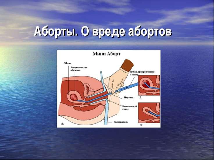 Аборты. О вреде абортов