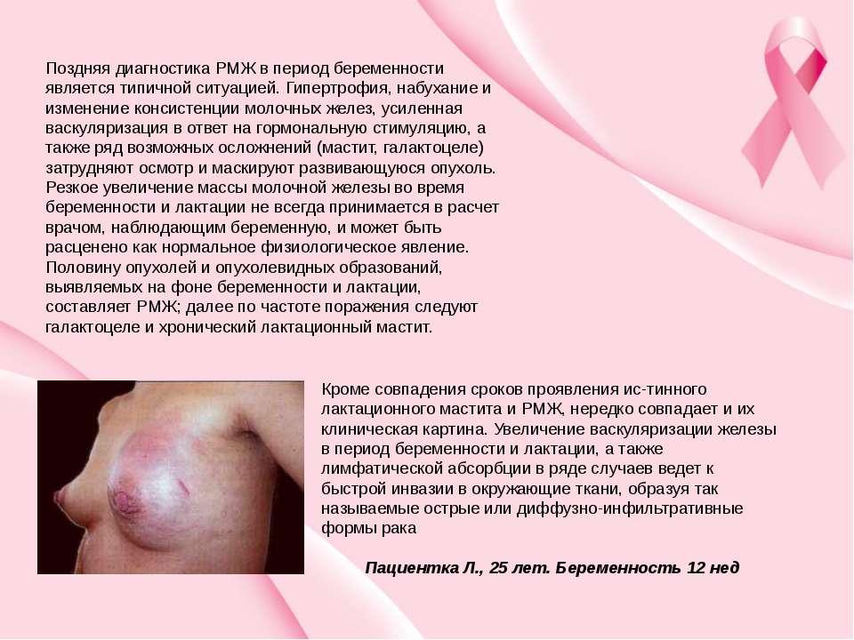 Поздняя диагностика РМЖ в период беременности является типичной ситуацией. Ги...