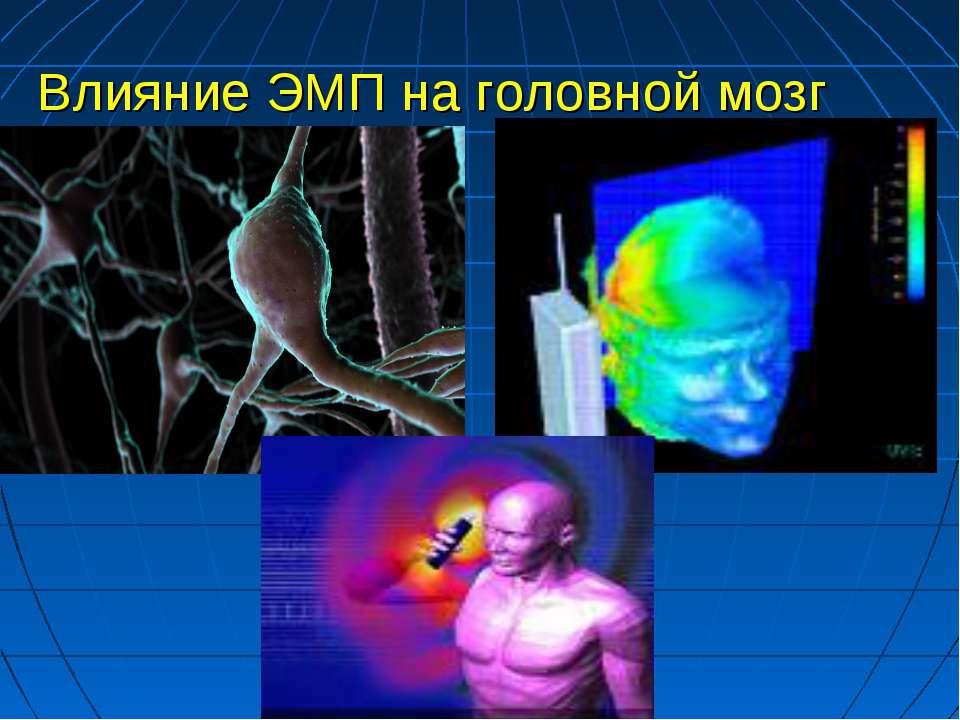 Влияние ЭМП на головной мозг