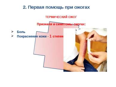 2. Первая помощь при ожогах ТЕРМИЧЕСКИЙ ОЖОГ Признаки и симптомы ожогах: Боль...