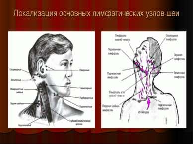 Локализация основных лимфатических узлов шеи