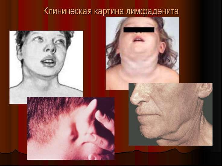 Клиническая картина лимфаденита