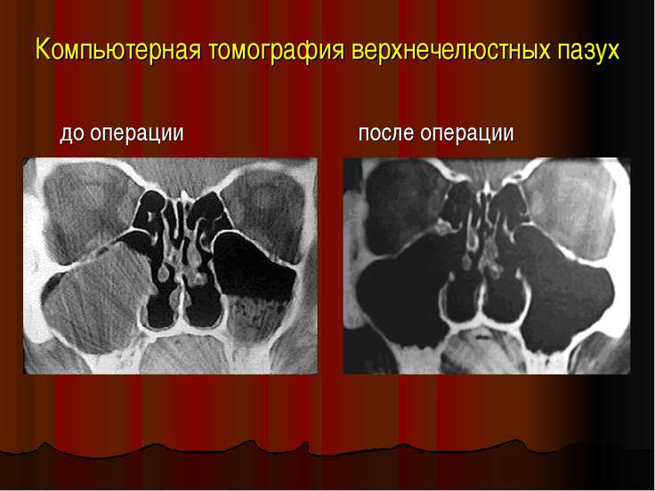 Компьютерная томография верхнечелюстных пазух до операции после операции
