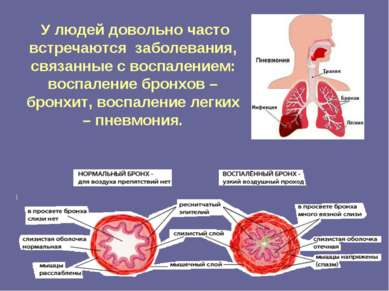 У людей довольно часто встречаются заболевания, связанные с воспалением: восп...